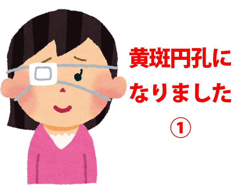 右目に眼帯をする女性
